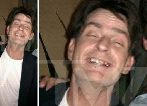 charlie sheen no teeth picture. (not)sober Charlie Sheen